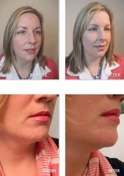Dermaflage Before and After Pictures