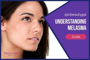 Melasma – What It Is & How to Get Rid of It
