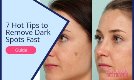 7 Hot Tips to Remove Dark Spots Fast   Finally Even Out Your Skintone!