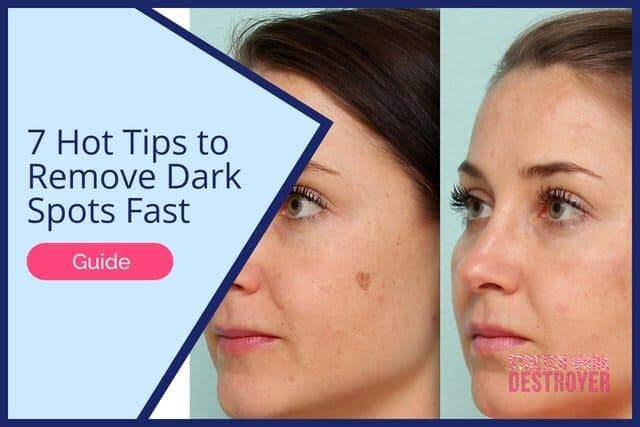 7 Hot Tips to Remove Dark Spots Fast | Finally Even Out Your Skintone!