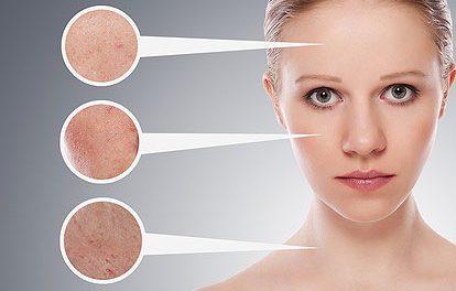 Best Dark Spot Correctors for the Face – Gentle Yet Effective Correctors