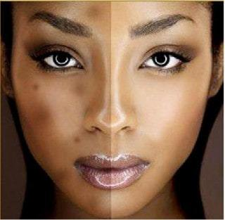 Best Dark Spot Correctors for Black Skin
