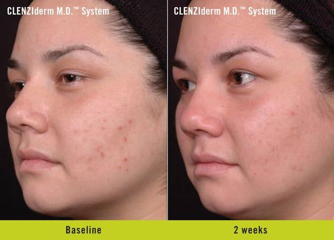 CLENZIderm Before and After 2