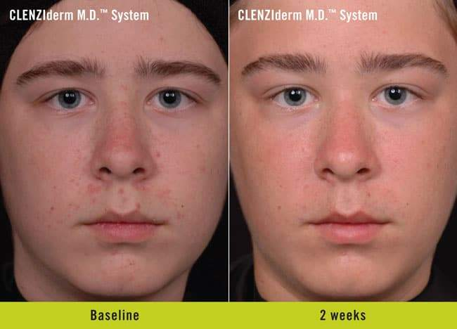 CLENZIderm Before and After 3
