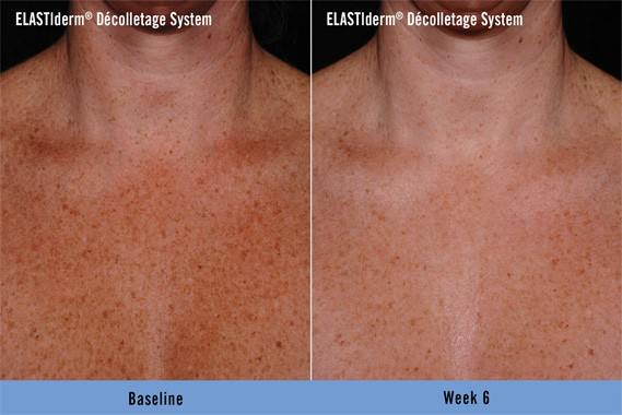 ELASTIderm Decolletage Before and After 2