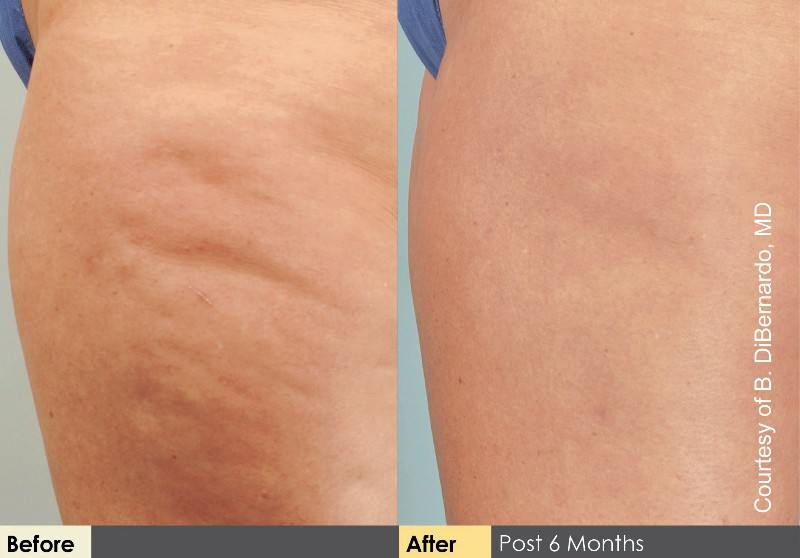 Cellulaze Before and After Thighs