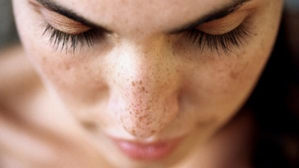 Anti-Aging Secrets: Fighting Back Against Dark Spots