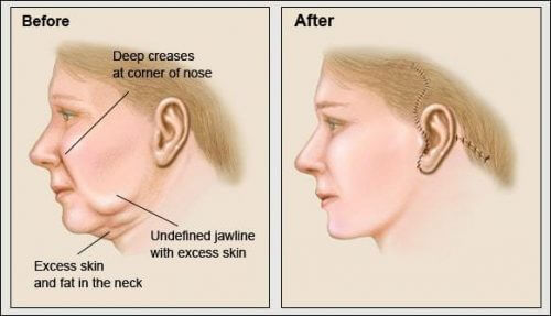 Neck Lift Procedure