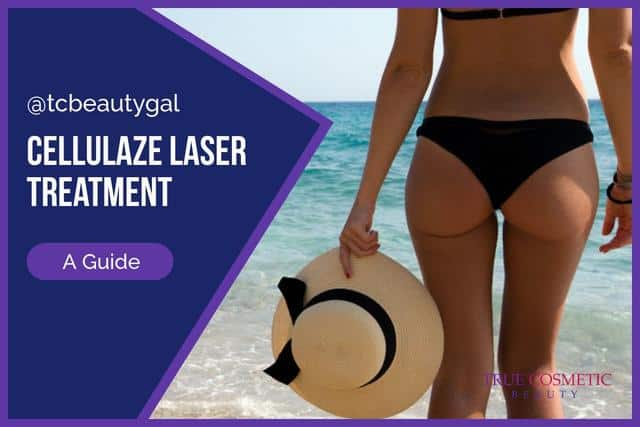 Cellulaze Laser Cellulite Removal Treatment Review