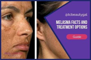 Melasma Facts and Treatment Options